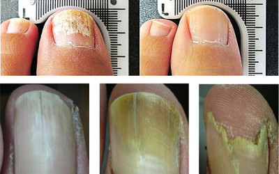 Lunula Laser to treat fungal nail infection